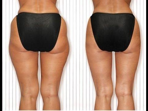 Image result for hip fat