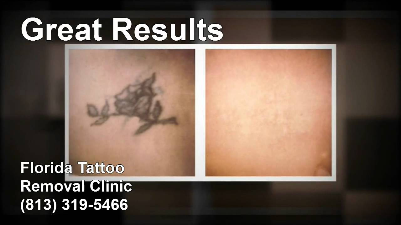 Florida Tattoo Removal Clinic (813) 319-5466