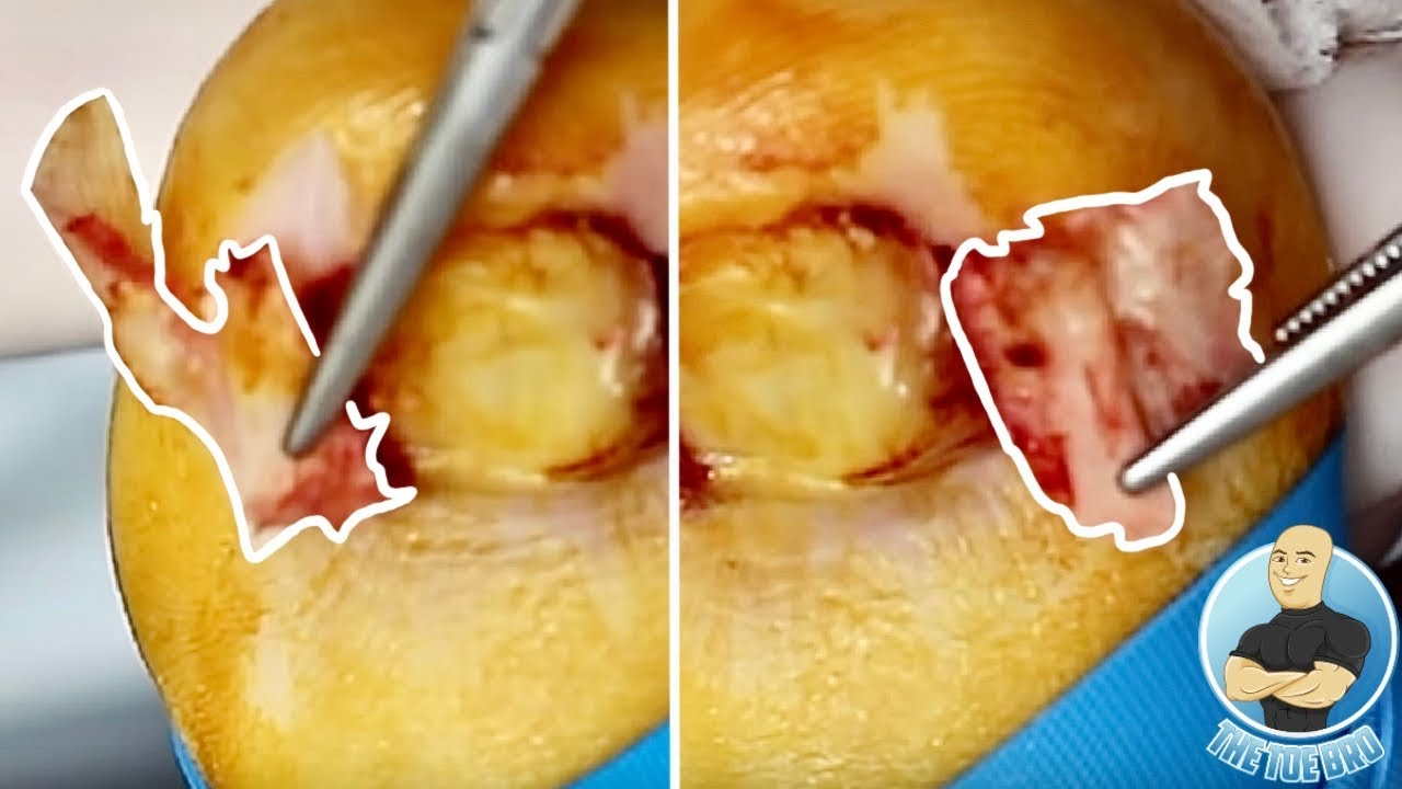 SUPER DEEP INGROWN TOENAIL REMOVAL ATTACHED TO SKIN!!!