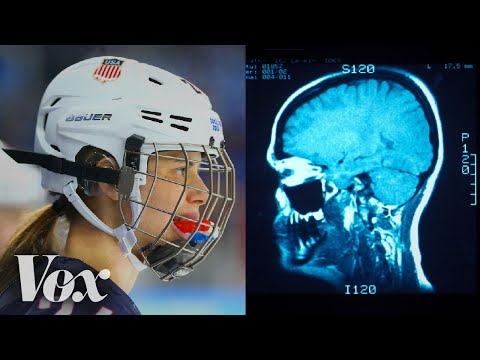 Why women's hockey has a higher concussion rate than football