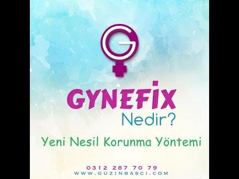 Mit gynefix erfahrungen negative Kupferkette (hormonfreie