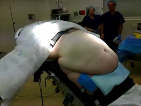 220kg man for sleeve gastrectomy - Dr Ken Wong