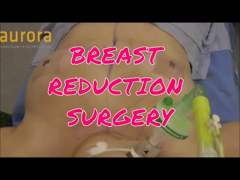 My Breast Reduction - The Surgery   Kirstie Marie