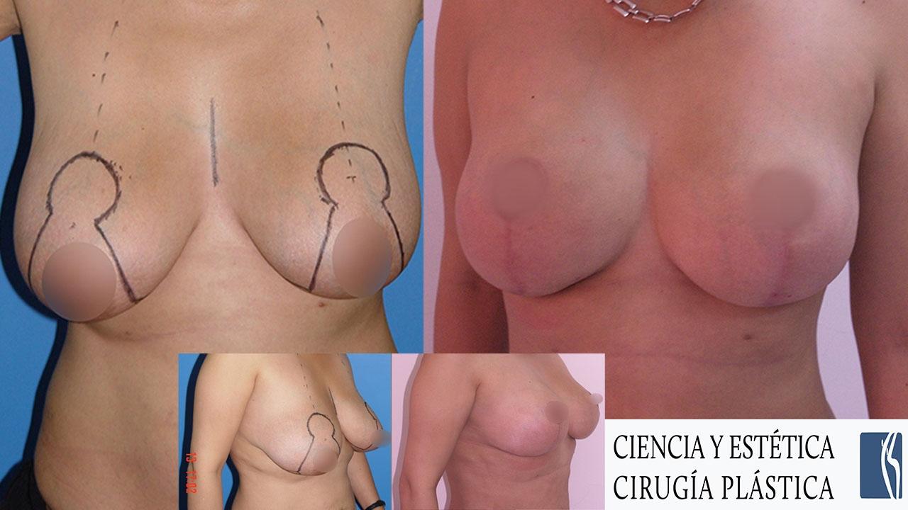cirugia plastica de senos