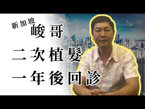 FUE植髮經驗談 | 峻哥二次植髮一年回診 | 林宜蓉醫師 Dr.Yi Jung Lin 台灣植髮 Taiwan hair transplant