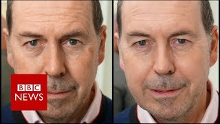 Skin printer wipes years from your face - BBC News