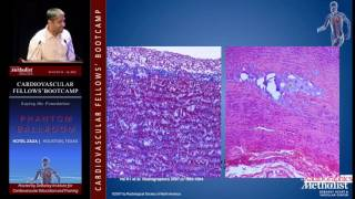 Diagnosis and Imaging of Thoracic and Abdominal Aortic Aneurysm (Mitul Patel, MD)