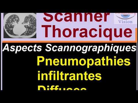 interprétation de Scanner et radiographie Thoracique: Diagnostic des Pneumopathies et fibroses