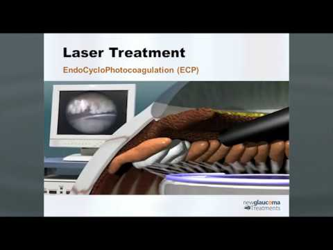 Continuous Wave and Micropulse  Cyclophotocoagulation  for Glaucoma