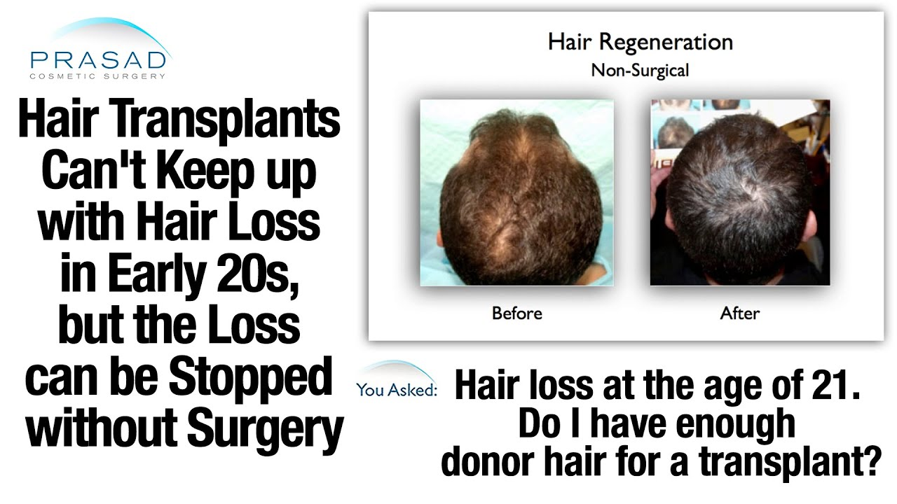 Why Hair Transplants Can't Keep with Hair Loss in the 20s ...