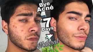 Remedio casero para el acne rápido y efectivo 7DIAS😱🔥
