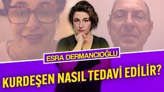 Kurdeşen Nasıl Tedavi Edilir? - <b>Esra Dermancıoğlu</b>