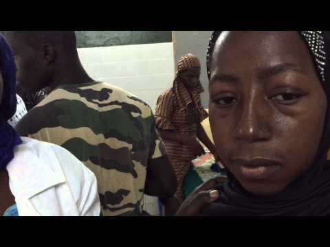 Hiv infected child and malnutrition