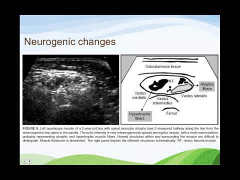 The Use of Muscle Ultrasound in Diagnosing CMD by Dr. Naz Da