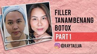 PENGALAMAN TANAM BENANG, FILLER & BOTOX