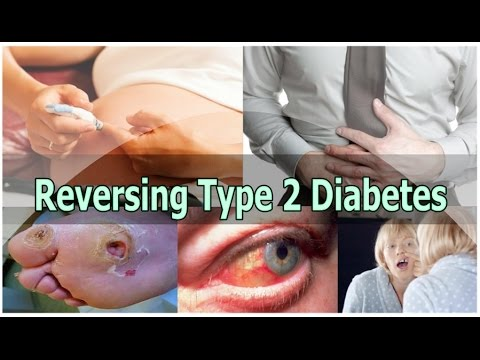 Reversing Type 2 Diabetes | How To Reverse Diabetes Naturally | No Medication