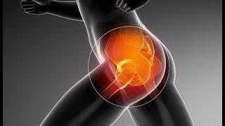 Causes de la douleur de la hanche et comment éviter les médicaments contre la douleur