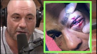 Joe Rogan Reacts to Eddie Alvarez's GRUESOME Eye Injury