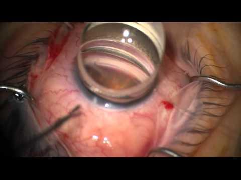 360 trabeculotomy  GATT