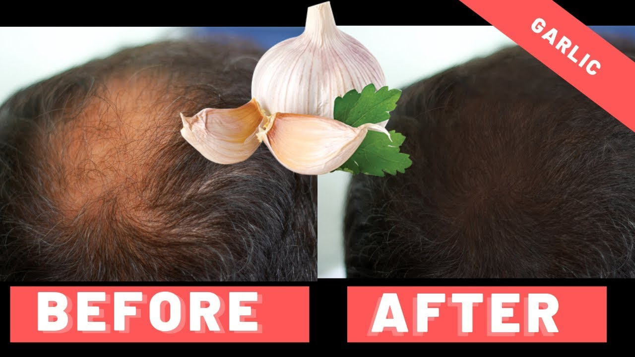 does garlic help hair loss?: 3 month experiment - hairguard