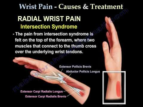 Wrist Pain,causes and treatment,Part 2 - Everything You Need To Know - Dr. Nabil Ebraheim