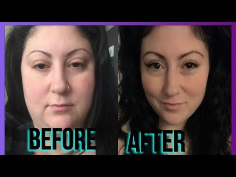 weight-loss-face-transformation-compilation