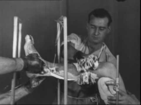 Reduction and treatment of a fracture of the calcaneus (1933), pt 2 of 2