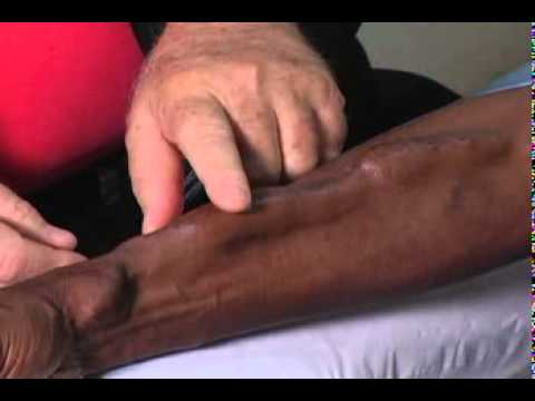 Fistula First   Healthcare Professionals   Where Do I Start If I Am A Dialysis Center    Cannulation Of The AV Fistula   Cannulation Video Chapter 4