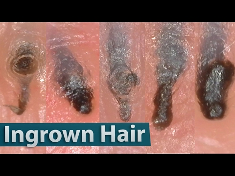 Ingrown Hair Removal Close up 200X | 埋没毛を除去