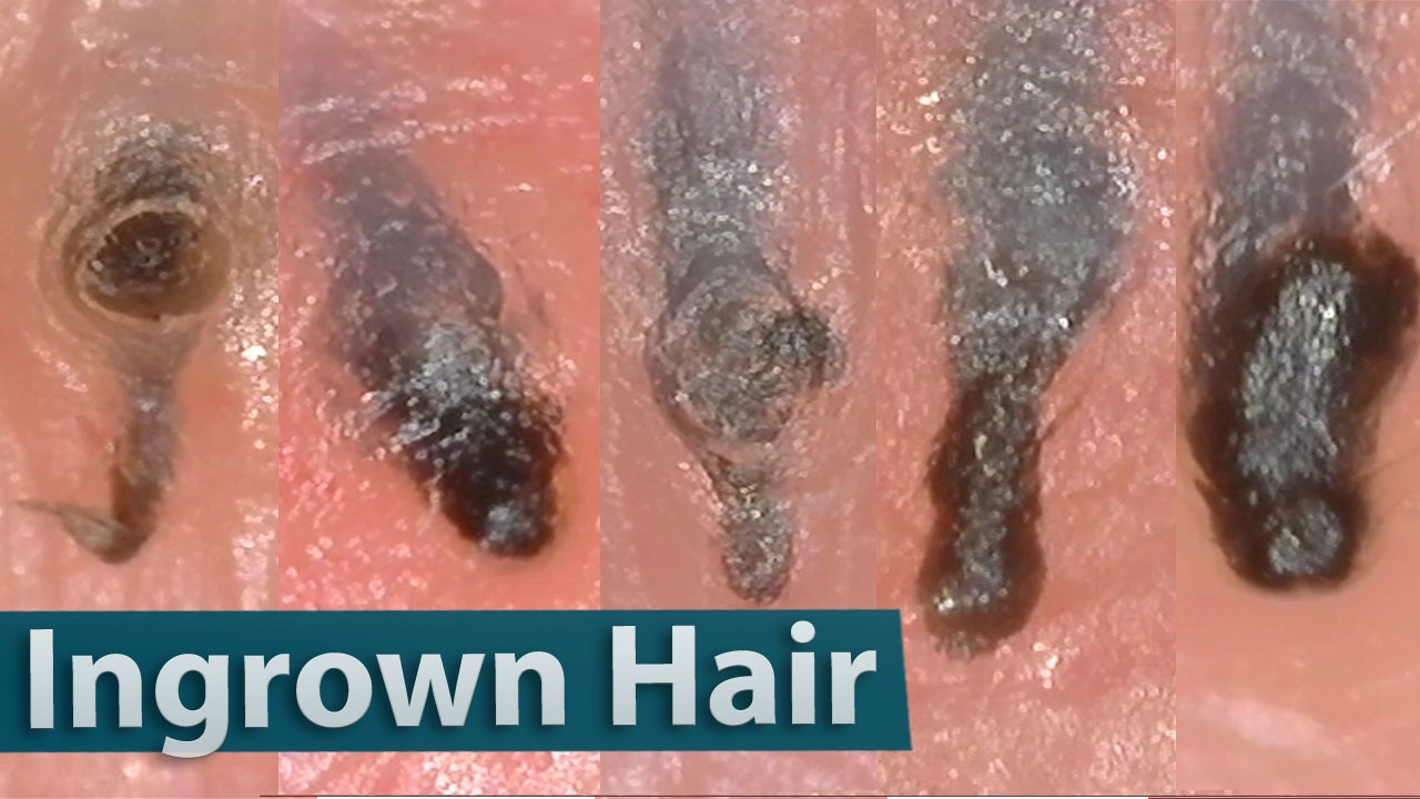 Ingrown Hair Removal Close up 200X | 埋没毛を除去 - YouTube