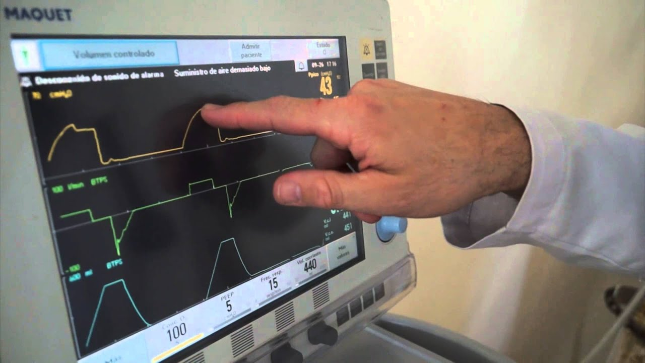 Ventilaci n mec nica invasiva youtube - Ventilacion mecanica controlada ...