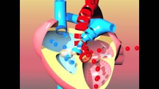 Congenital Heart Defects I: ASD, VSD, AS, PS, PDA And PFO