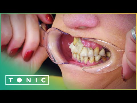 Woman Glues Her Teeth Back In Place To Avoid The Dentist   The Truth About Your Teeth   Tonic