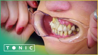 Woman Glues Her Teeth Back In Place To Avoid The Dentist | The Truth About Your Teeth | Tonic