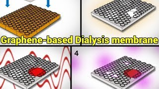 MIT's new Graphene-based Dialysis membrane works 10 times faster | QPT