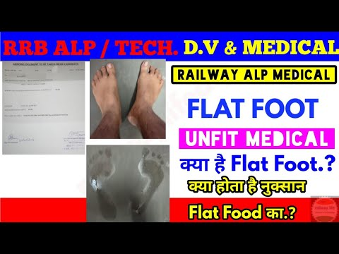 RAILWAY ALP, TECH Medical Unfit Due To Flat Foot in A1 & B1 Medical Standard