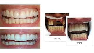 Dental Care of Miller : Dentist in Miami, Florida