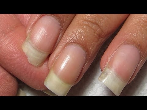 How to Fix a Broken Corner | DIY Nail RepairTutorial - YouTube