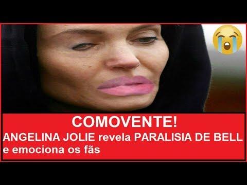 PARALISIA DE BELL PDF