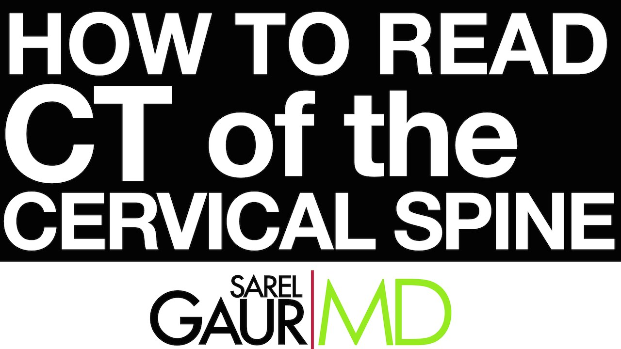 How To Read Ct Of The Cervical Spine Youtube