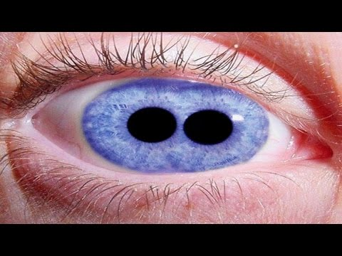 Most Shocking Eyes! (Eye Tattoos, Cataracts, Pupula Duplex)
