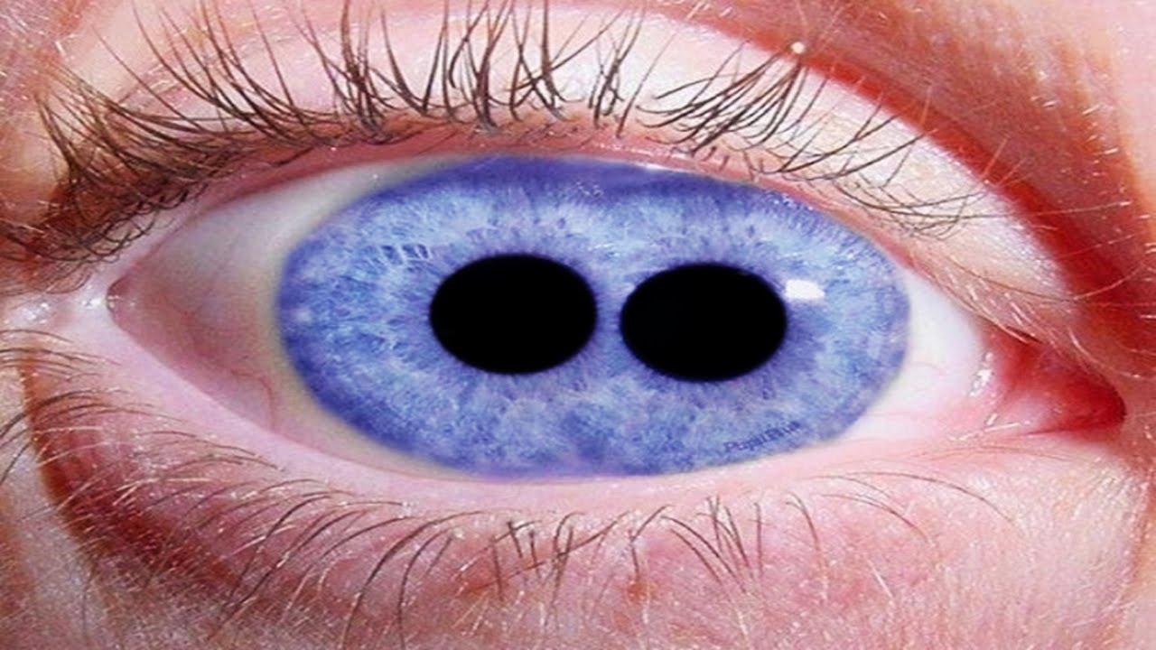 Most shocking eyes eye tattoos cataracts pupula duplex for Tattoo your eyes