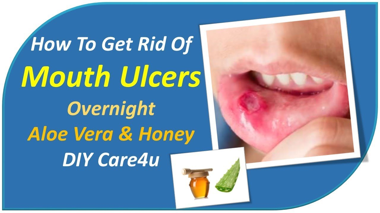 how to get rid of dry lips overnight