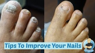 DIY at Home How To Make Your Thick Toenails Look BETTER!!! Cutting of Thick Toenails