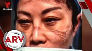 Coronavirus: Con caras destrozadas por máscaras de protección enfermeras piden ayuda | Telemundo