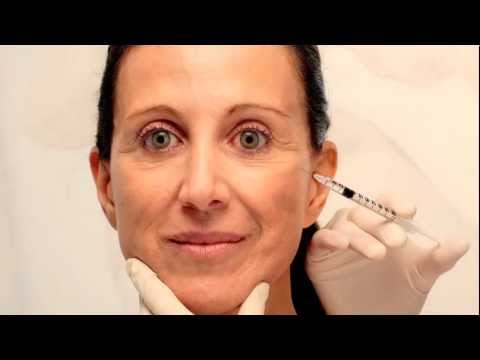 Facial Fillers Video with Dr. Jason B. Diamond