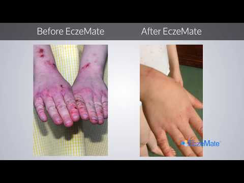 EczeMate.com | Child With Severe Eczema and Itching Finds Cure - See 7 Day Results