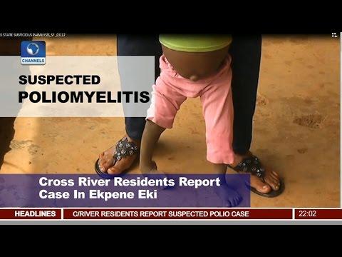 News@10: C/Rivers State Investigates Suspected Polio Case 03/01/17 Pt 1