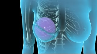 Breast Cancer | Breast Reconstruction | Nucleus Health