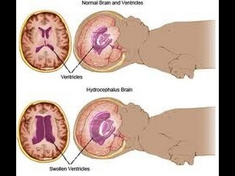 what is hydrocephalus Hydrocephalus is a condition where there is a build up of fluid in the brain it can be fatal if left untreated learn about the causes and treatments.